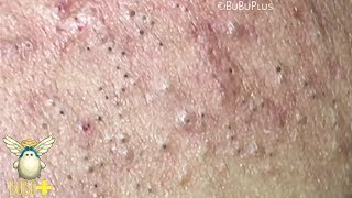 Forehead Blackheads, Cystic Acne And Pimples Extraction On Face Acne Treatment 724078!