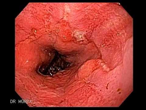 Zespół Mallory'ego-Weissa - endoskopia