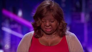 Gambar cover Kechi: Miracle Plane Crash Survivor POURS HER HEART out on Stage | America's Got Talent 2017