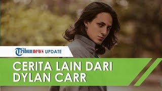 Kecelakaan dan Muntah Darah, Dylan Carr Sempat Didiamkan Rumah Sakit karena Disangka Tak Mampu Bayar