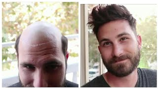 Man Weave Transformation #33 (Compilation) | Cut By Phil Does Hair