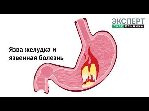 Язва желудка и язвенная болезнь