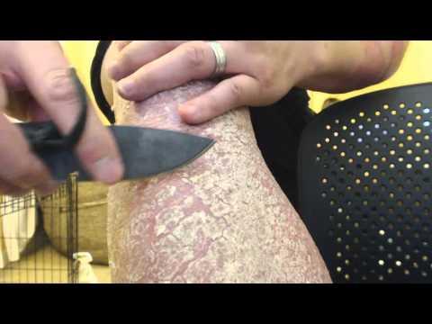 Le traitement du psoriasis par les préparations laennek