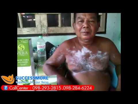 การรักษา Siktivkar ของโรคสะเก็ดเงิน