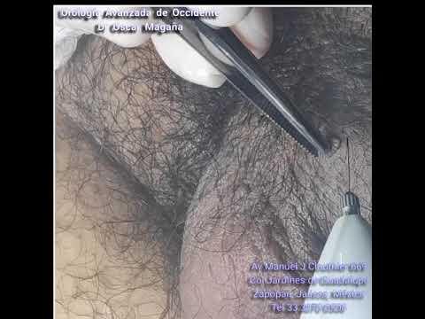 Fapte de platyhelminthes phylum