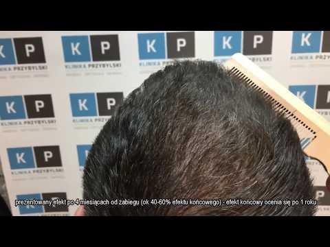 Maska do włosów rozjaśnienie z cynamonem