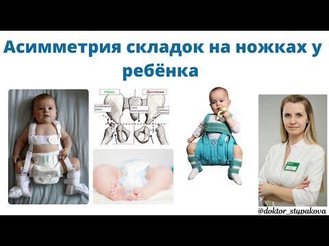 Асимметрия складок на ножках у ребёнка-это признак дисплазия тазобедренных суставов?К