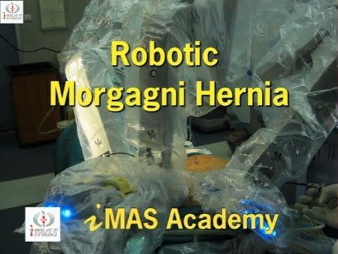 Robotic Morgagni Hernia