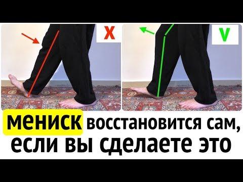 МЕНИСК коленного сустава восстановится без операции, если вы