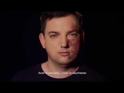 Comme la dermatite distinguer du psoriasis