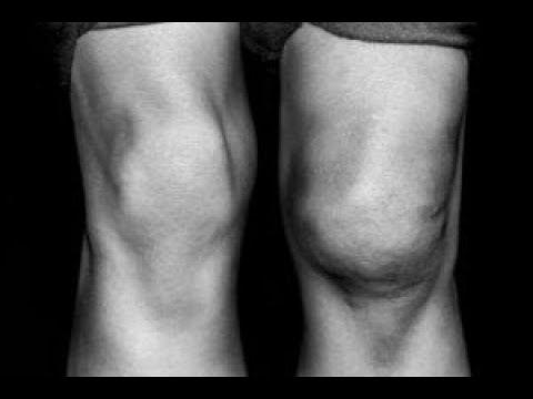 Frunze de mesteacăn pentru tratamentul artrozei
