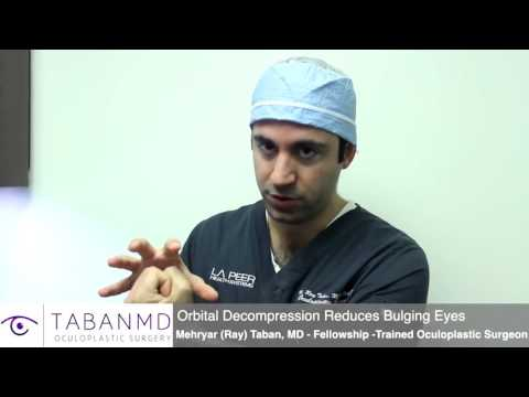 Orbital Decompression Surgery For Thyroid Eye Disease