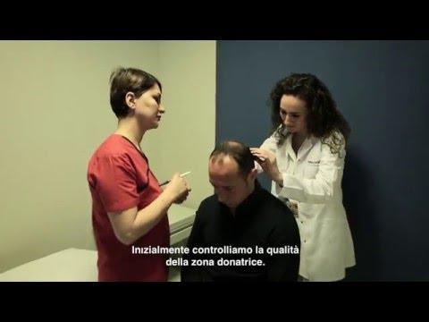 Clinica cura di Saratov di psoriasi