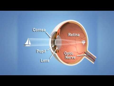 Látás helyreállítása új