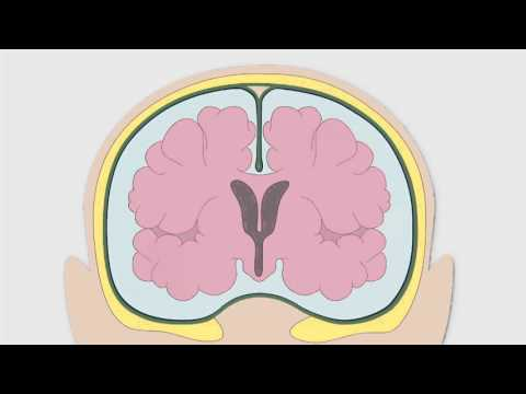 1-2 crise hypertensive