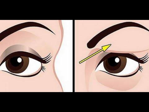 Miopie redusă a vederii