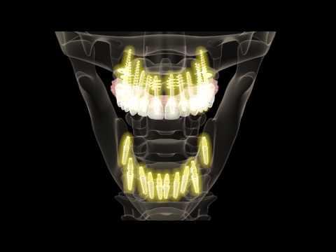 Nagy ízületi rheumatoid arthritis