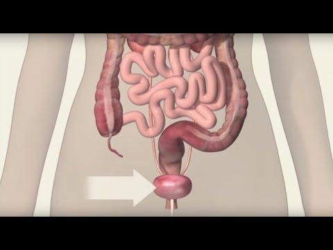 Paraziti vezica biliara