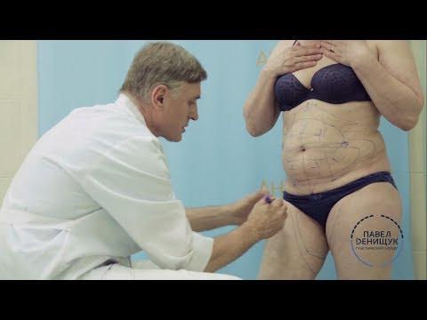 О похудении методы и диеты