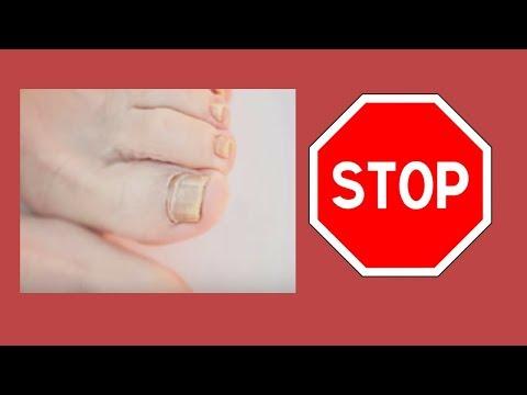 Die Entzündung auf dem Finger der Hand neben dem Nagel die Behandlung