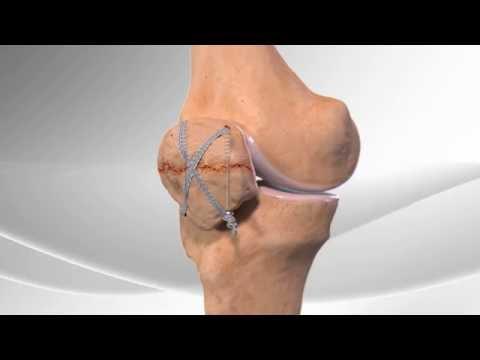 Csípő gerincízületek íveinek ízületi gyulladása