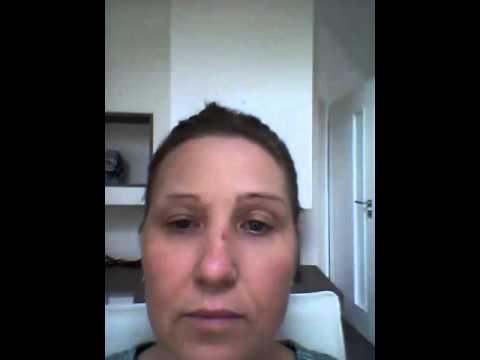 Аллергический ринит отек глаз