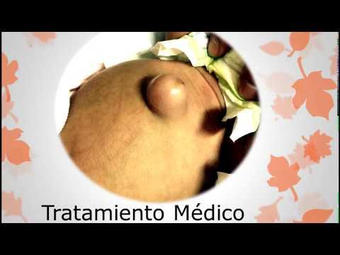 Dolor de cabeza con osteocondrosis cervical-torácica