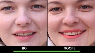Убрать щель между зубами. Прямые виниры. Диастема