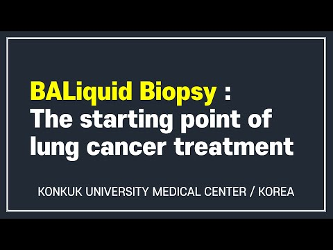 BALiquid Biopsy : The Starting Point of Lung Cancer Treatment