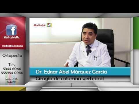 La contracción de las causas y el tratamiento de la cadera