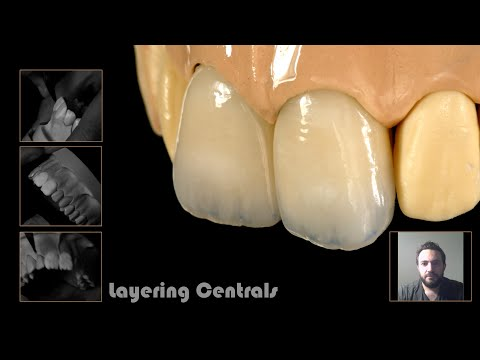 Layering central incisors by understanding the ceramic powders IN ENGLISH