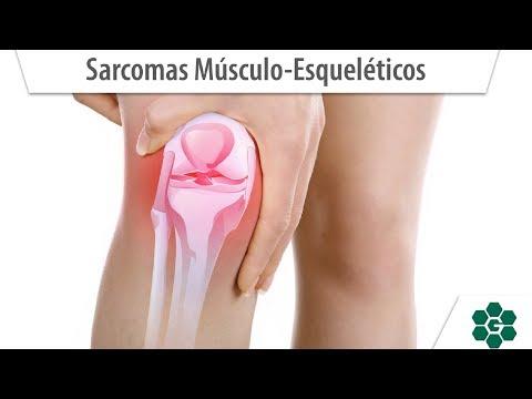 Ovarian cancer leg pain