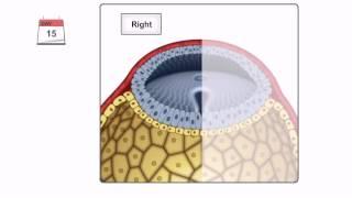 Embryology - Gastrulation