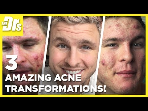 Are These the Best Acne Transformations Ever? | Compilation