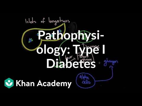 Die durchschnittliche Lebenserwartung eines Diabetiker Typ 2