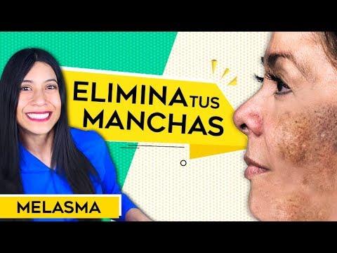 Como Eliminar MANCHAS en la piel - Melasma Tratamiento - MANCHAS CAFES