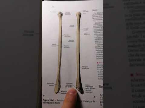 Il video del ceppo ginocchio