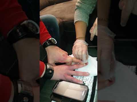 Wie die Beschädigung des Nagels zu behandeln