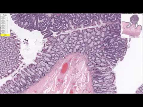 Поражение почек при вирусных гепатитах