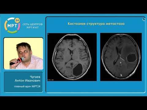 Метастатические поражения головного мозга