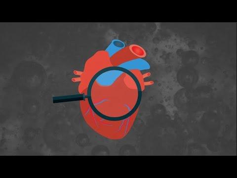 Hipertenzija išsiplėtusių venų negalia