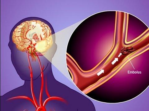 Periferinė hipertenzija