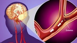 Stroke Prevention & Transient Ischemic Attack (TIA)