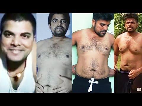 A fekélyes vastagbélgyulladás súlycsökkenést idéz elő