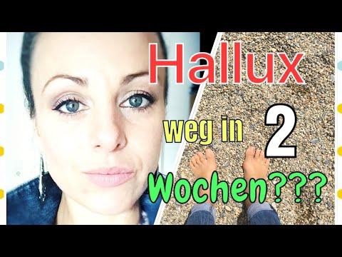 Hallux ohne OP Heilen? Teil 2