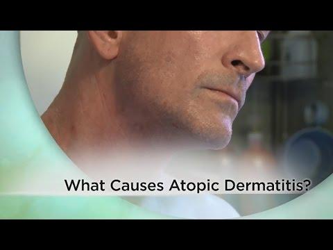 Cura di pelle atopic dermatite