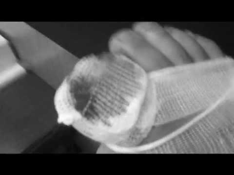 Wie gribok zwischen den Fingern der Beine dem Kind zu behandeln