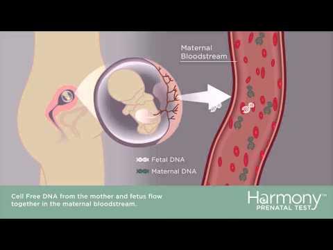 Deformazione di kifotichesky di una spina dorsale al bambino