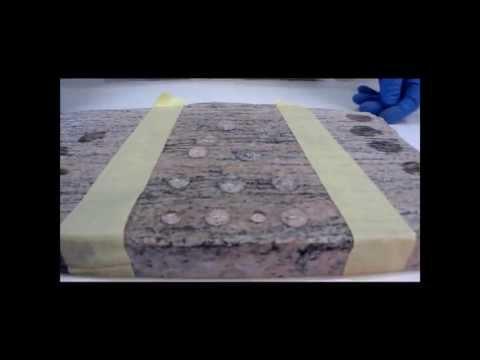 Il video scoliosi trattamento della colonna vertebrale