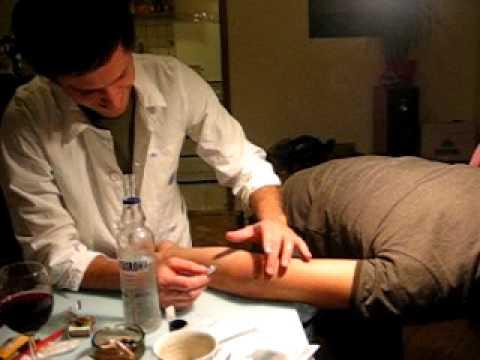 Objawy choroby zwyrodnieniowej dysku objawów piersiowej